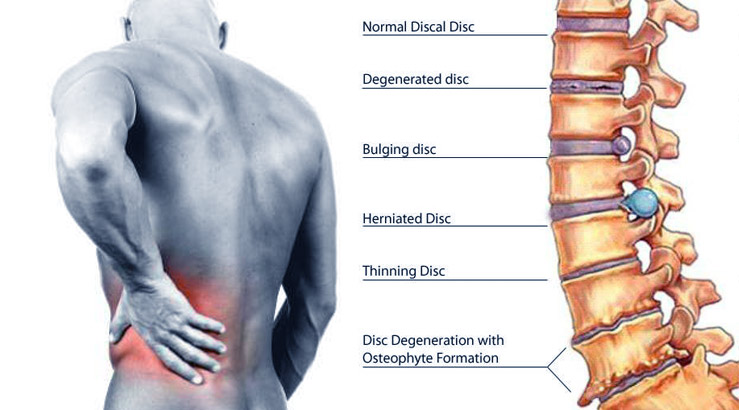 Chattanooga Herniated Disc Treatment